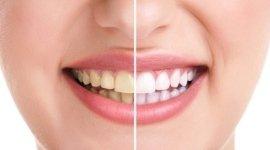 otturazioni dentali non visibili, sbiancamento dentale, faccette dentali estetiche