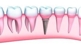 impianti osteointegrati, protesi dentali fisse, denti ricostruiti