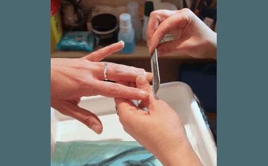 ricostrugione unghie