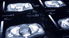 tumori renali e prostatici