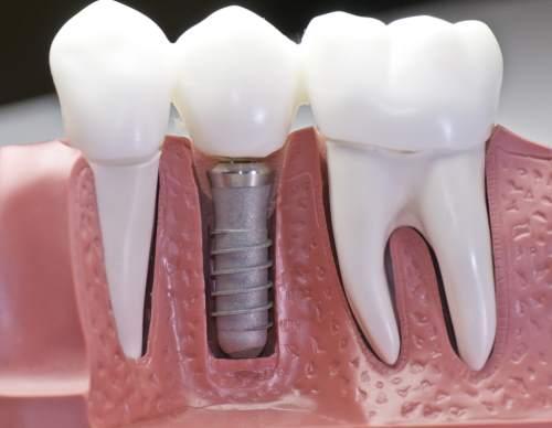 I denti sono stati chiusi e il perno inossidabile nelle gengive