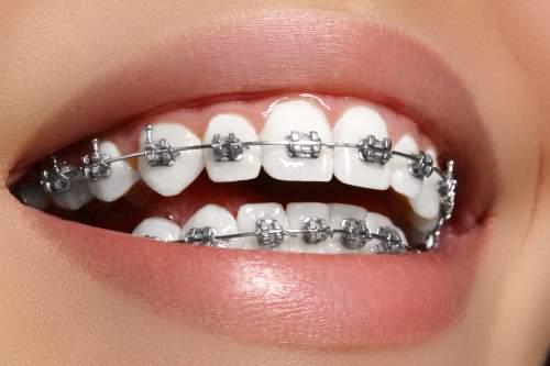 Bella sorriso di donne con denti bianchi e parentesi graffe