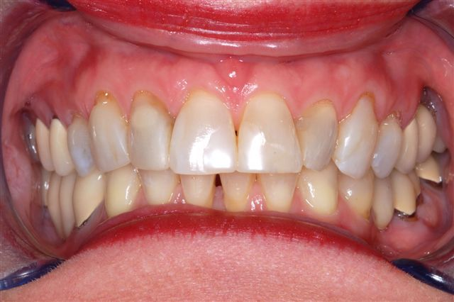 Dental Crowns Charlotte NC