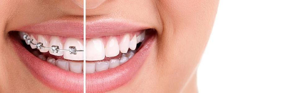 BELOTTI DR. CESARE - Dentista - Ceto - Brescia
