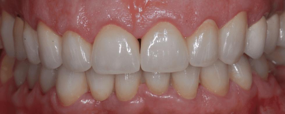 dei denti