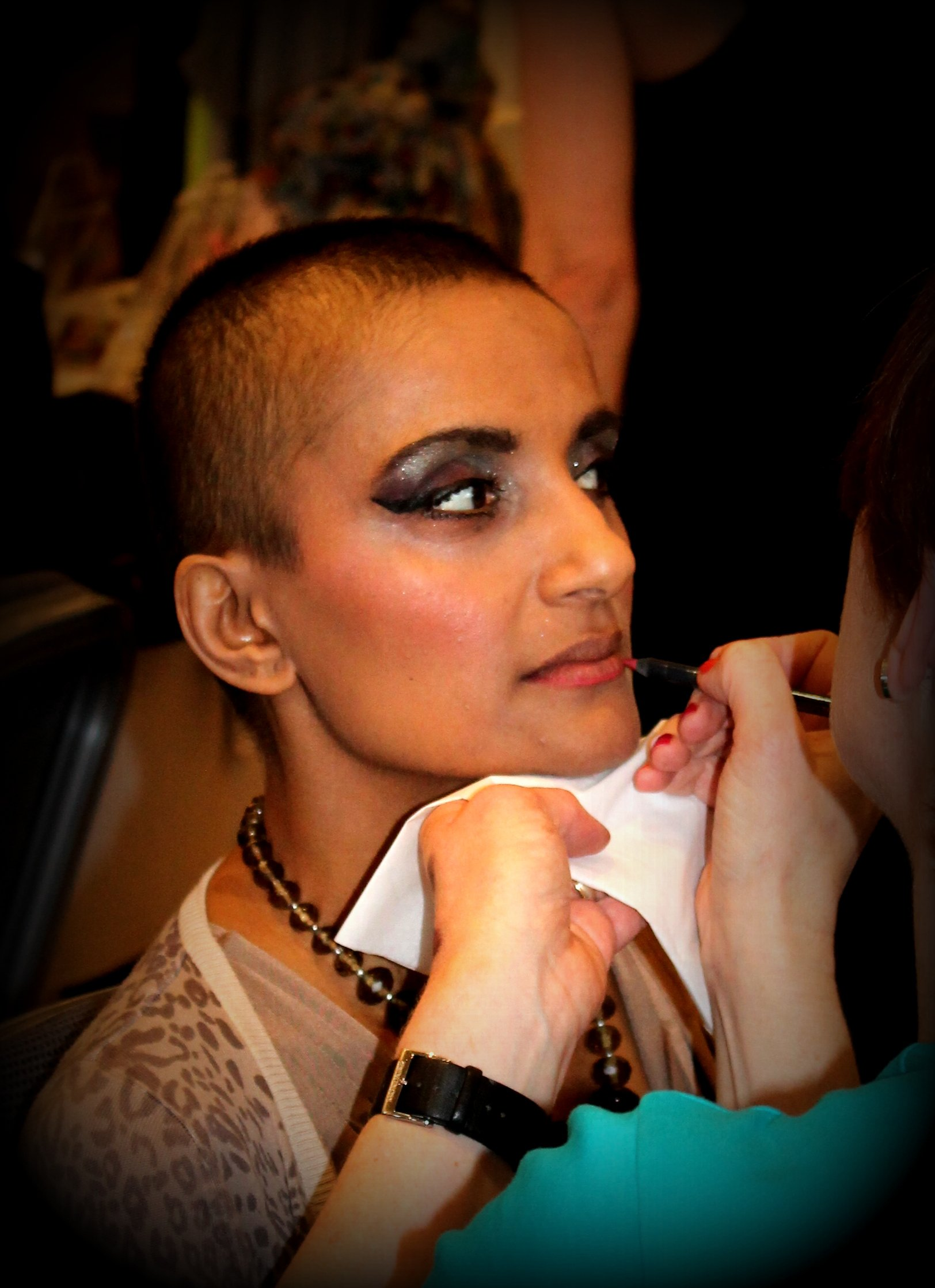 Dr Anneela Saleem during cancer treatment