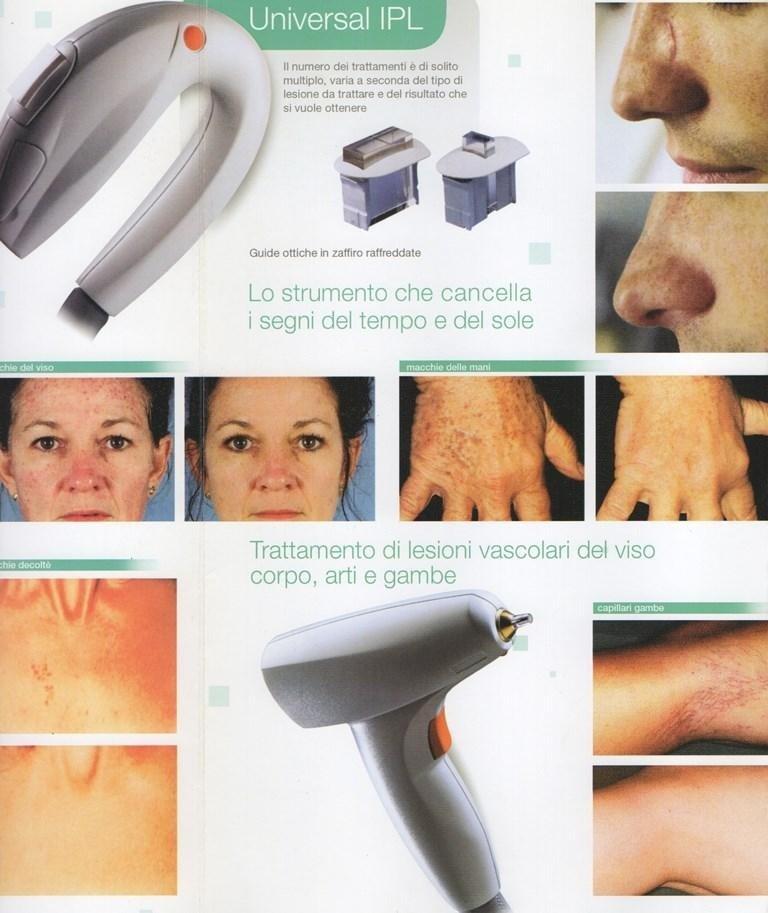 volantino sul trattamento delle lesioni vascolari