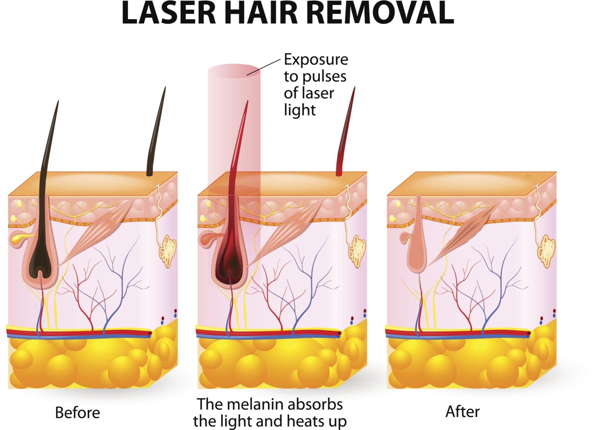 Ingrown pubic hair - Laser Hair Removal