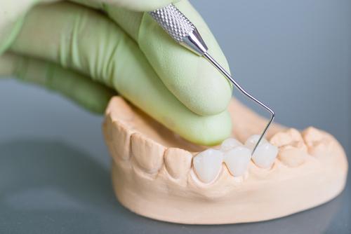 Dentist working on a bridge model