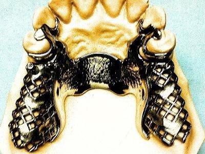 denti con scheletrato
