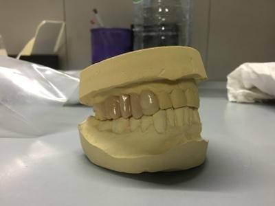 costruzione protesi denti