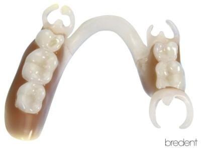 ricostruzione denti perfetti