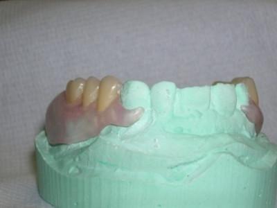 forma denti