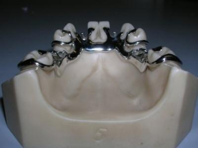 protesi con gancio