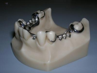 ricostruzione denti con gancio