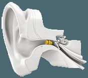 Phonak Hearing Aids Prices