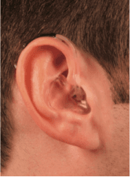 Phonak Hearing Aid Models