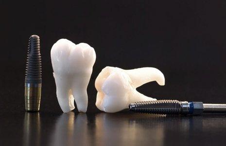 human teeth and screws