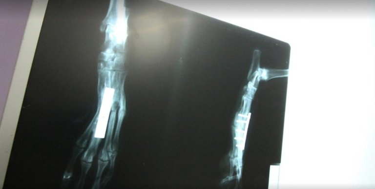 Rapporto di radiografica