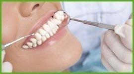 ablazione dentale