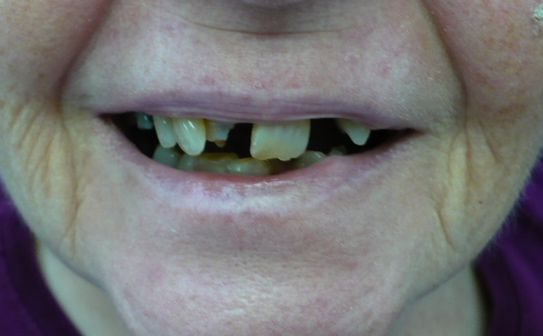 Before and after images of dental procedures