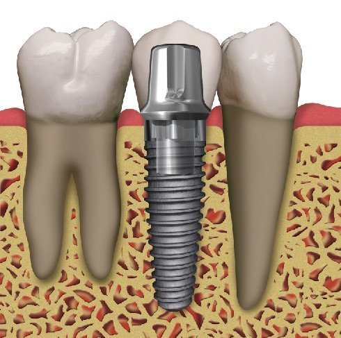 Dental Implants Pensacola FL