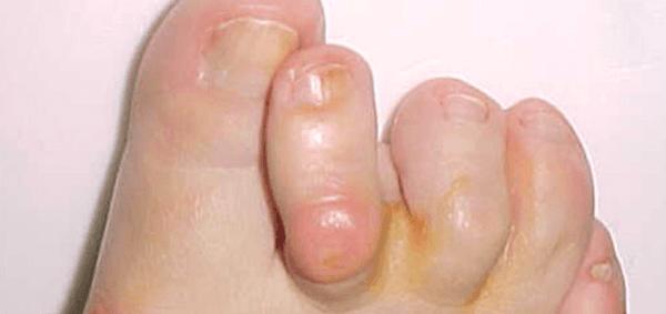 Borsite metatarso falangea (cipolla) da alluce valgo