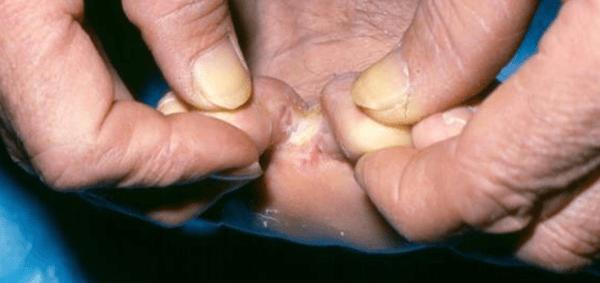 Callosità interdigitale: un tipo di malattia del piedi
