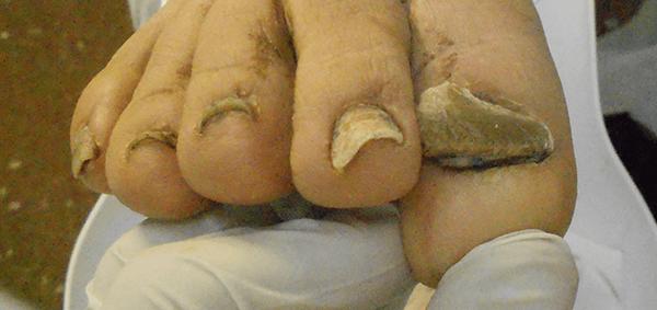 L'onicogrifosi è l'alterazione nella crescita della lamina ungueale