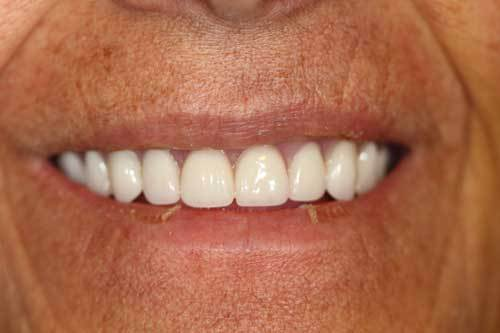 Cosmetic Dentistry Telluride, CO