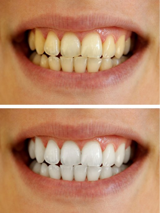 Teeth Whitening for Telluride, CO