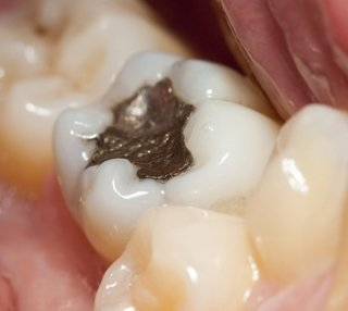General Dentistry Ridgway, CO