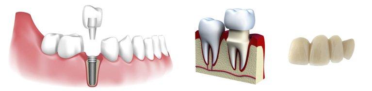 rowville dental surgery dental crown