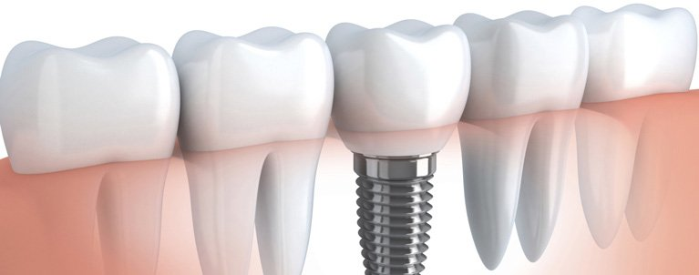 rowville dental surgery dental implants
