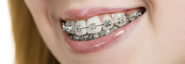 rowville dental surgery woman with brackets
