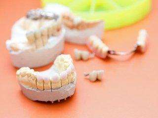Impianti dentali con carico immediato