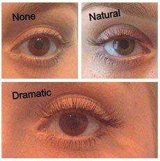 eye beauty treatment