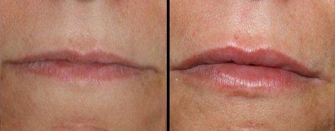 aumento e ridefinizione labbra