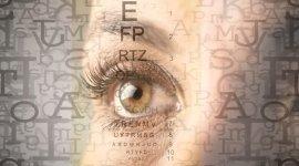 oculistica, dermatocalasi, oftalmologia