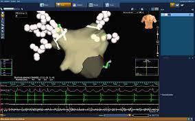 ablazione della fibrillazione atriale mediante metodica tridimensionale non fluoroscopica NAVx Ensite