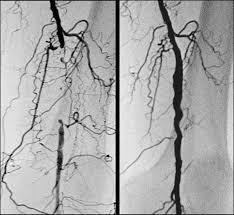 angiografia di stenosi occlusiva vasale arteriosa
