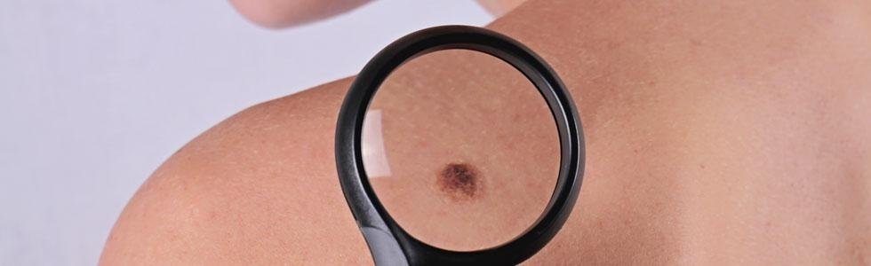 dermatologo