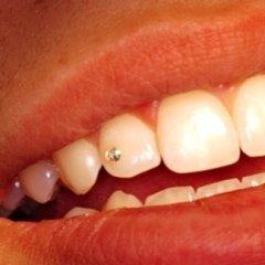 applicazione di swarovski sul dente, applicazione percing