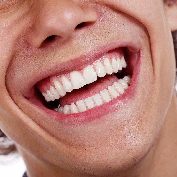Una bocca curata con dentatura sana