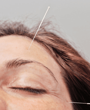 needles in a womans forehead and sinus