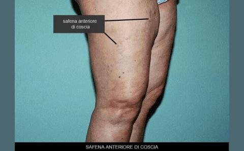 safena anteriore di coscia
