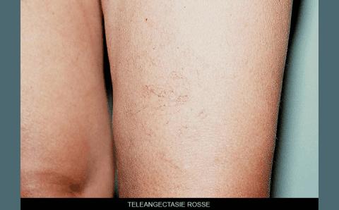 teleangectasia rossa