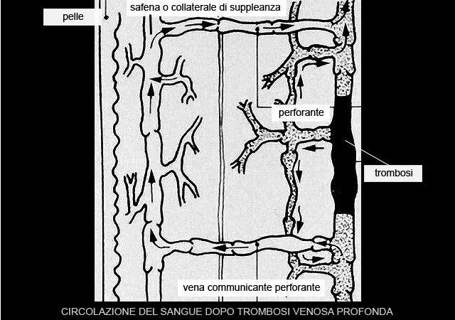 trombosi venosa