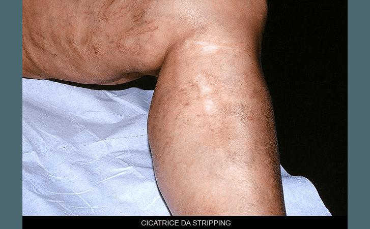 cicatrice da stripping