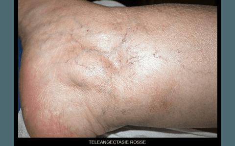 teleangectasia